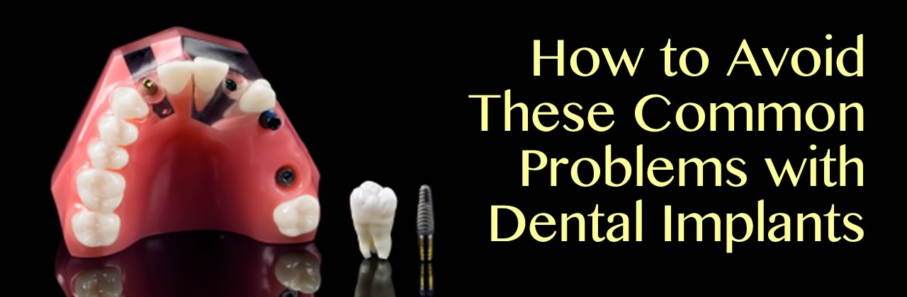How to Avoid These Common Problems with Dental Implants in Eau Claire WI?