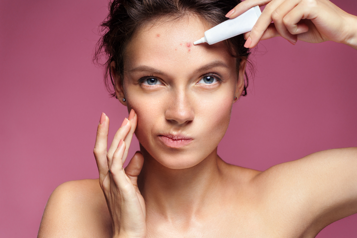 Learn about Some All Natural Remedies for Acne