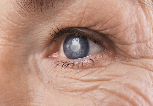 Cataract concept